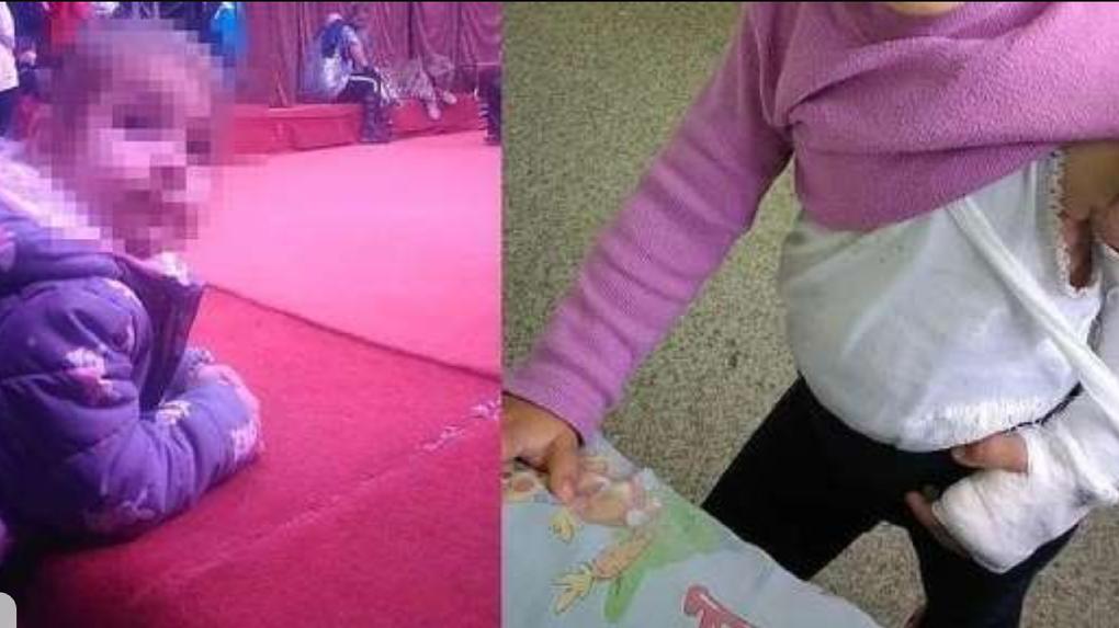 В Новосибирске родители девочки, которая сломала руку в цирке, подали в суд