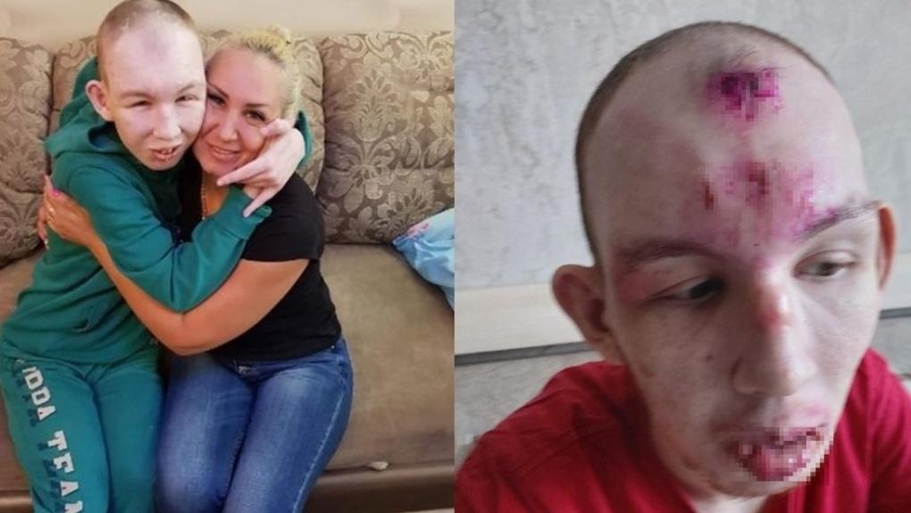 Порванное ухо и следы от верёвки: мать инвалида заявила о зверском обращении в новосибирском интернате