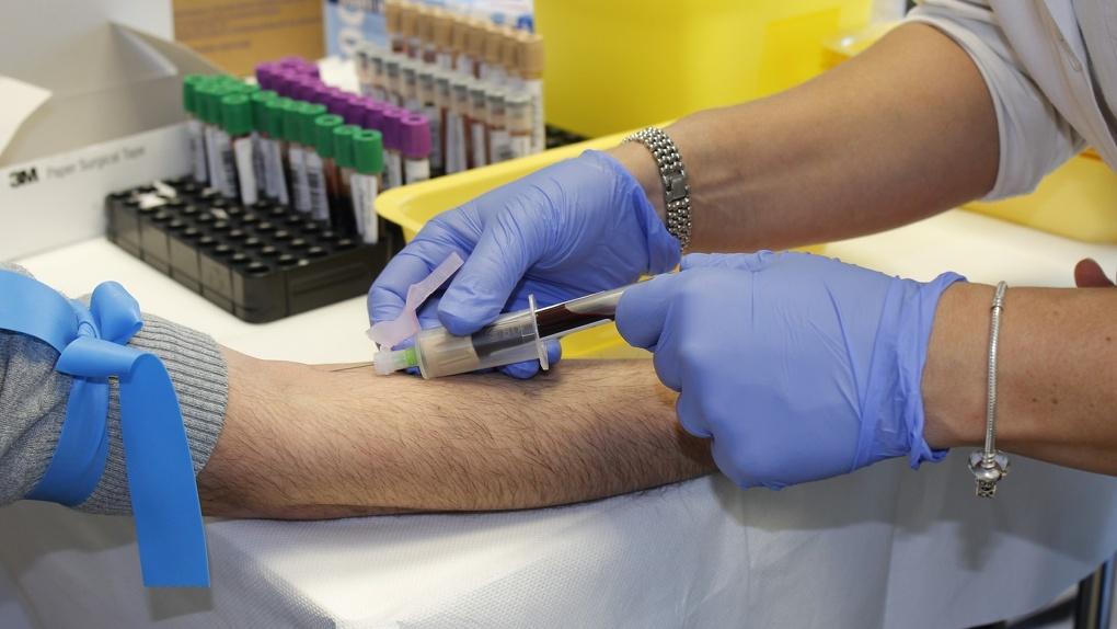 Роспотребнадзор рассказал о работе новосибирских вирусологов над вакциной от COVID-19
