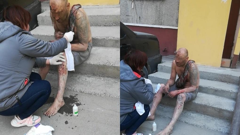 Страшного мужчину в крови спасла жительница Новосибирска
