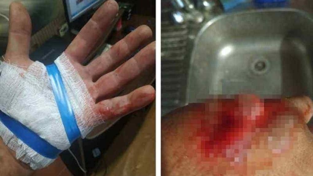 «Я умолял обработать рану»: врачи бросили истекающего кровью новосибирца