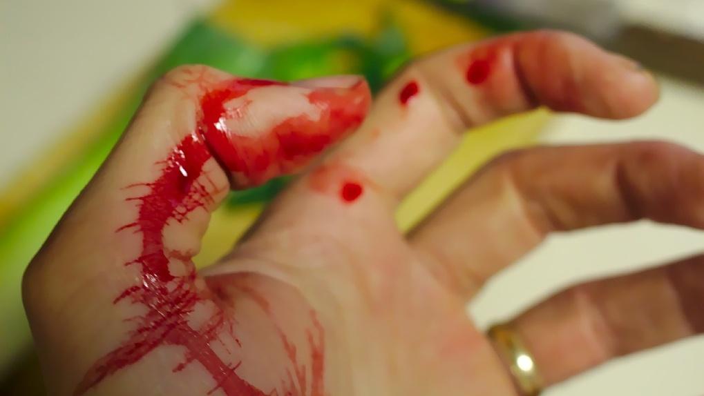 В Новосибирской области ревнивец изрезал двумя ножами 25-летнюю девушку