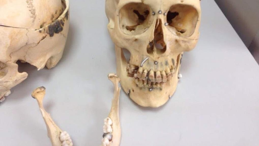 Страшная находка: новосибирец обнаружил скелет мужчины во дворе