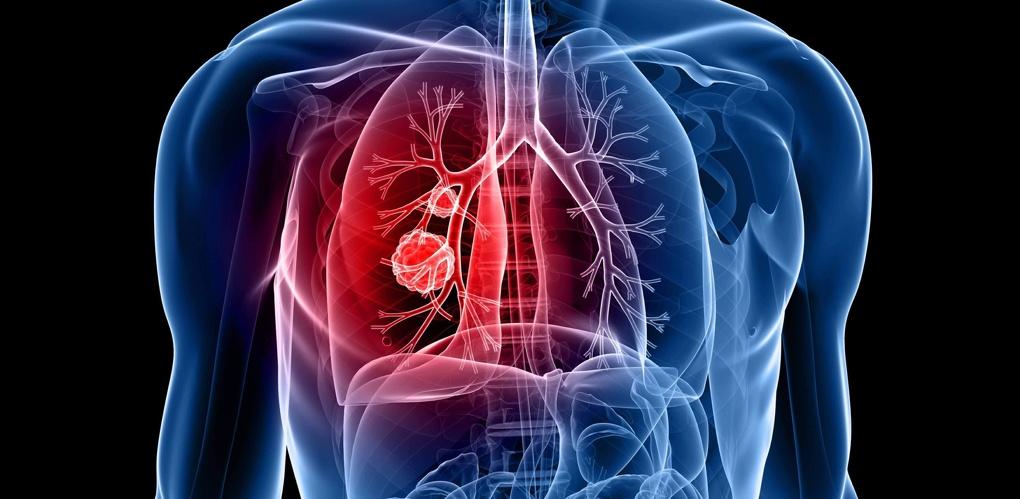 Омская область вошла в число лидеров по смертности от болезней органов дыхания