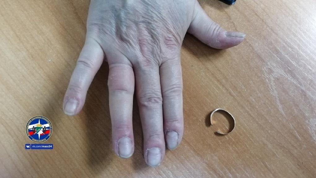 Новосибирские спасатели посреди ночи приехали к сибирячке, чтобы снять обручальное кольцо с пальца