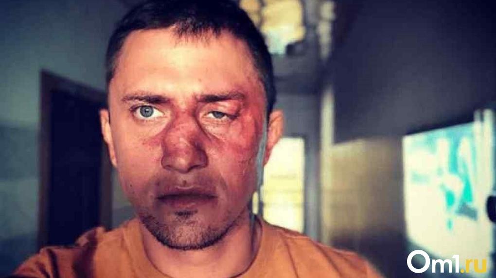 Боксёр-бизнесмен жестоко избил новосибирского актёра Павла Прилучного
