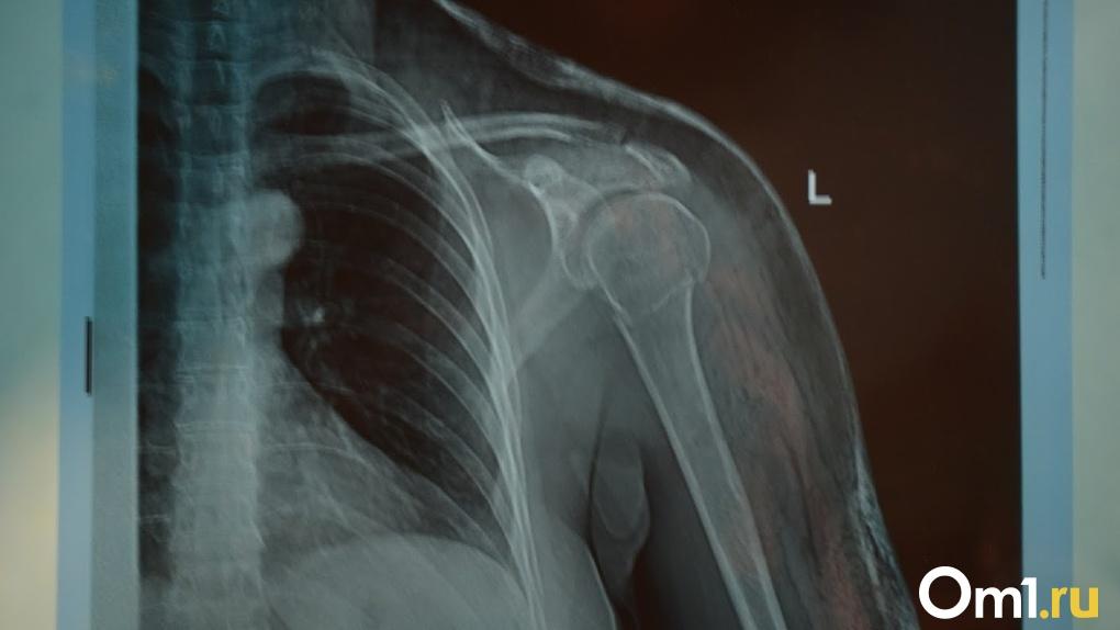 Ампутации проходят ежедневно: врач рассказал о страшном осложнении при COVID-19
