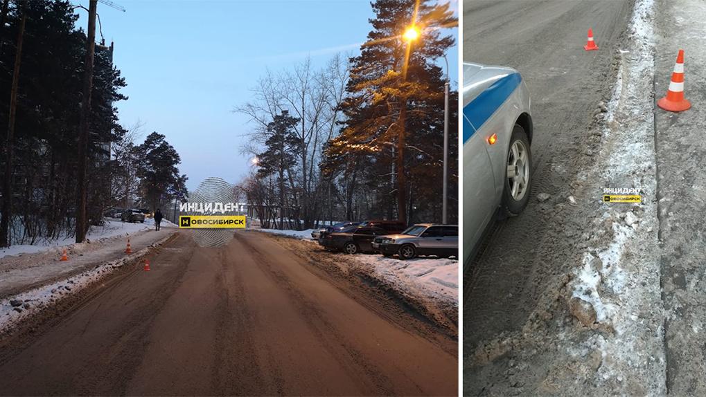 В Новосибирске пешеход попал в больницу в тяжелом состоянии после наезда машины