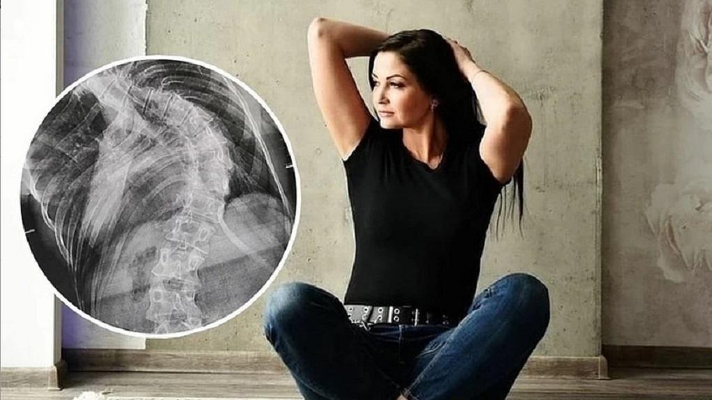Новосибирские врачи спасли женщину с тяжёлой формой сколиоза