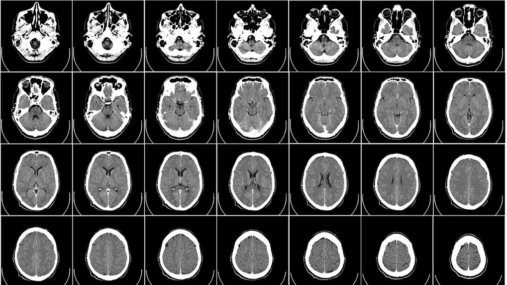 Шум в ушах и головокружение: омичка 12 лет жила с опухолью в мозге, размером с шарик для пинг-понга